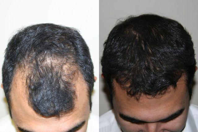 Tônico Man Power Hair