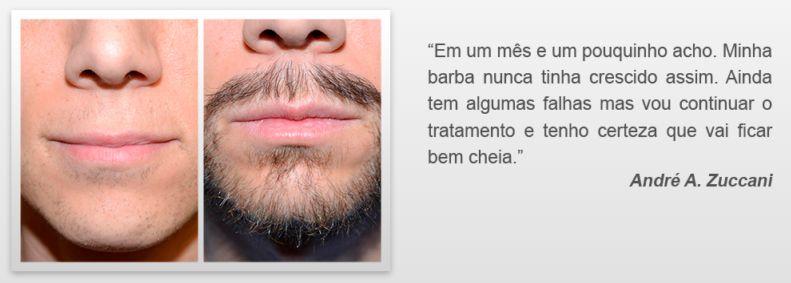 Ultra Beard